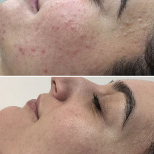 A before and after image of a persons face with Acne