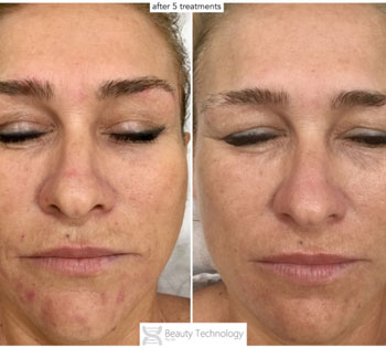 A before and after image of a persons face that has received Byonik Laser Treatment