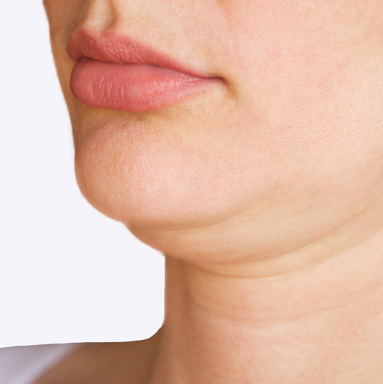 An image of a female showing a double chin