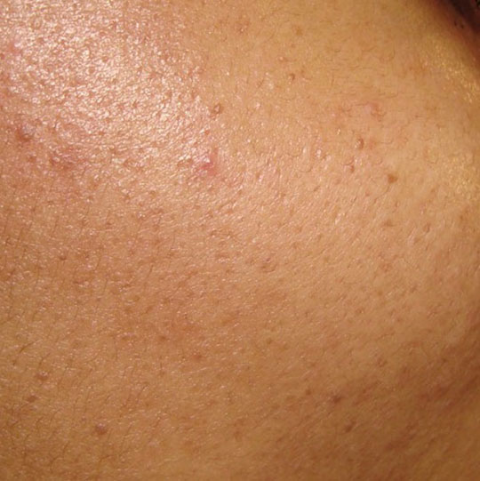 A before and after image of a persons face with Acne after treatment