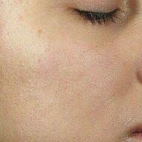 an image of a persons face with Acne after treatment