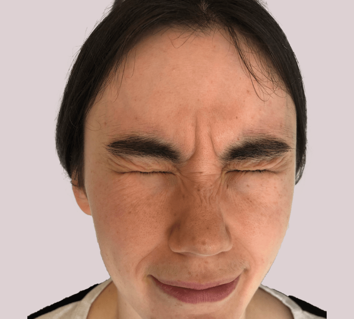 Before image of a persons face before receiving Facial Filler Treatment