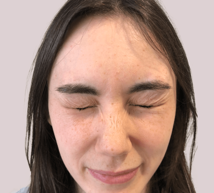 After image of a persons face before receiving Facial Filler Treatment